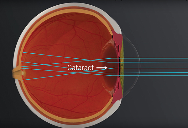 Cataract eye graphic at Bochner Eye Institute in Toronto